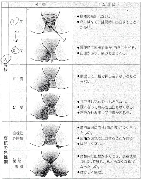 内痔核の程度