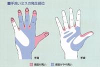 手洗いミスの多い部位_感染対策マニュアルより
