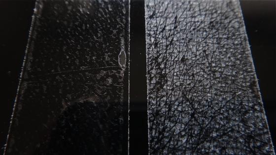 セロファンテープによる角質剥離(右)