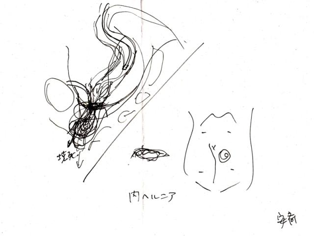 小腸閉塞手術説明図