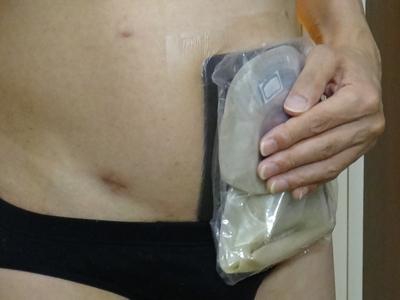 優肌パーミロールと改良型ショートタイプ自作防水カバーによるストーマ装具の防水検討