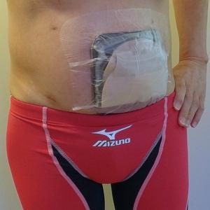 ストーマ装具水泳用防水カバー上からのドレッシング材貼付