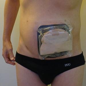KenU開発水泳用ストーマ装具防水カバー装着