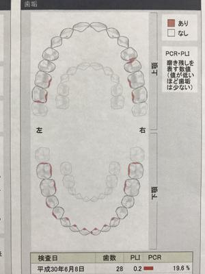 KenU歯垢20180608.jpg