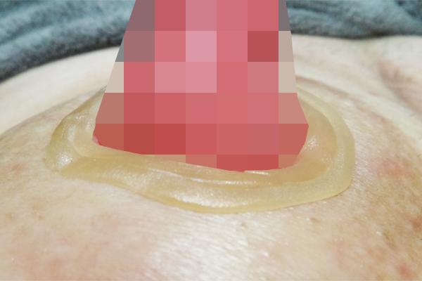 KenUストーマ周囲へのアダプト皮膚保護シール2重巻き