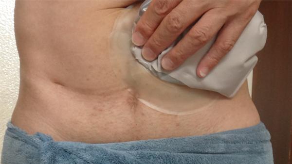 コロプラスト ブラバ 伸縮性皮膚保護テープ装具面板下側に接着