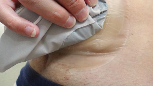 コロプラスト ブラバ 伸縮性皮膚保護テープ試用1日後下部皺