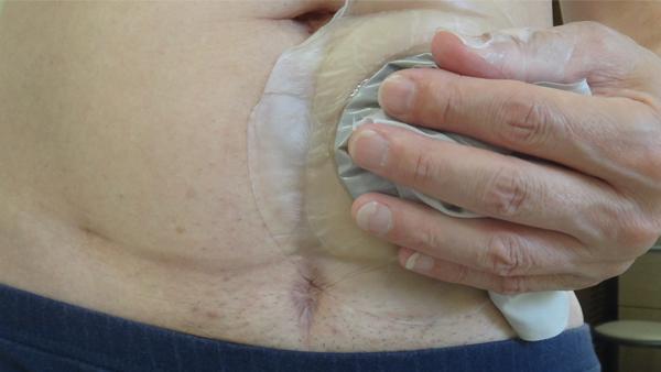 コロプラスト ブラバ 伸縮性皮膚保護テープ試用2日後上部皺.jpg