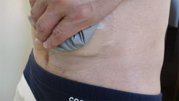 コロプラスト ブラバ 伸縮性皮膚保護テープ試用2日後下部皺